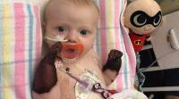 مرض نادر يحول أطراف طفل لكتل زرقاء