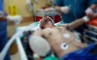 4 شهداء واكثر من 445 اصابة بجمعة الشهداء والأسرى في غزة