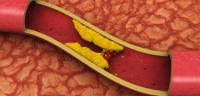 مشروبات لتخفيض الكوليسترول في الدم