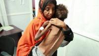 18 مليون يمني سيموتون جوعاً ..  صمتكم يقتلهم مرتين