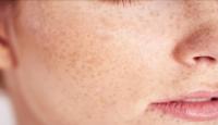 6 أشياء مفاجئة قد تؤثر على بشرتك دون أن تدركها