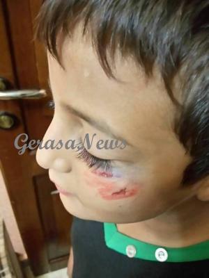 أظافر معلمة تدمي وجه طفل بأحد مدارس بدر الجديدة (صور)