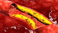 أطعمة تجنبها للحفاظ على نسبة الكوليسترول في الدم
