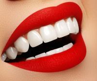 خلطات منزلية لتبييض الأسنان