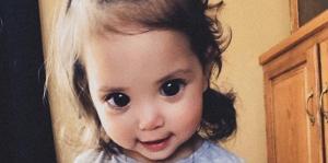 """مرض نادر يجعل عيون طفلة كأميرات """"ديزني"""" (صور)"""