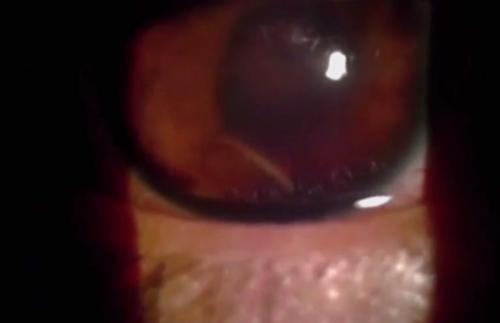 مخلوق غريب داخل عين إنسان ! (فيديو)