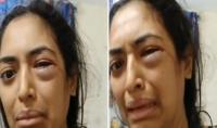 فيديو ينقذ سيدة من تعنيف زوجها