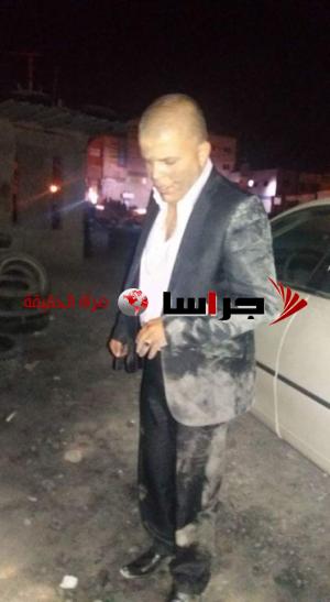 مجهولون يعتدون على مرشح قصبة المفرق أبو قمر (صور)