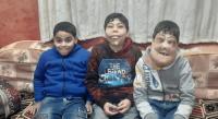 طفلان مصريان يثيران الرأي العام بمرضهما النادر