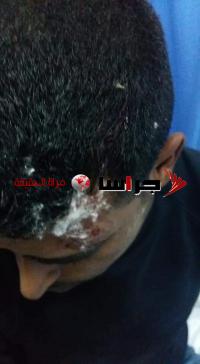 إصابة 5 معلمين في اعتداء على مدرسة الكتيفة في الموقر