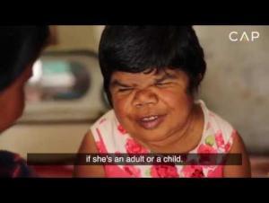 خمسينية تعيش بجسد طفلة صغيرة (فيديو)