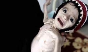 اليمن على حافة مجاعة مرعبة