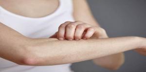 العلاقة بين الحساسية والأكزيما