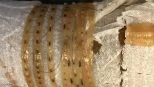 عثر على دودة طولها 1.5 متر في جسمه !