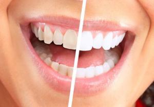 إحذروا: وصفات تبييض الأسنان على الإنترنت ..  هذه حقيقتها!