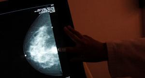 الموافقة على التجارب السريرية لأول لقاح ضد سرطان الثدي