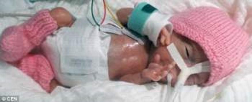 إيميليا أصغر رضيعة في العالم بوزن حبة فلفل Image