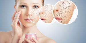 4 علامات تشير لالتهاب وتهيج بشرتك ورفضها لما تطبقينه عليها