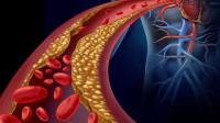 3 طرق لمعرفة ارتفاع الكوليسترول
