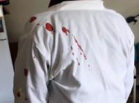 5 أشخاص يعتدون على ممرض بمستشفى الكرك