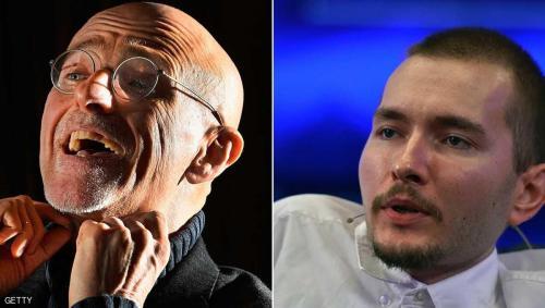 طبيب بريطاني ينسف إعلان نجاح زراعة أول رأس بشري !
