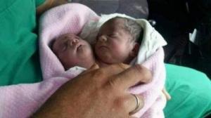 في حالة فريدة ..  ولادة طفل برأسين في إدلب!