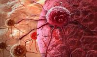 العلماء يحلون لغزا عمره 100 عام حول السرطان