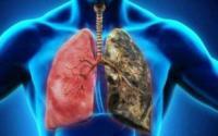 كيف يقول لك جسمك أنك مصاب بسرطان الرئة؟