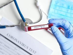 استياء من تاخر نتائج فحوصات كورونا في مراكز الصحة