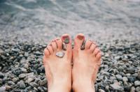 هكذا تحمين قدميك من التشقق في الشتاء