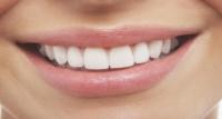 ما الذي يعنيه وجود مذاق معدني في فمك؟