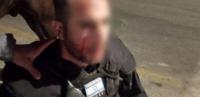 اصابة جندي صهيوني بمواجهات في القدس