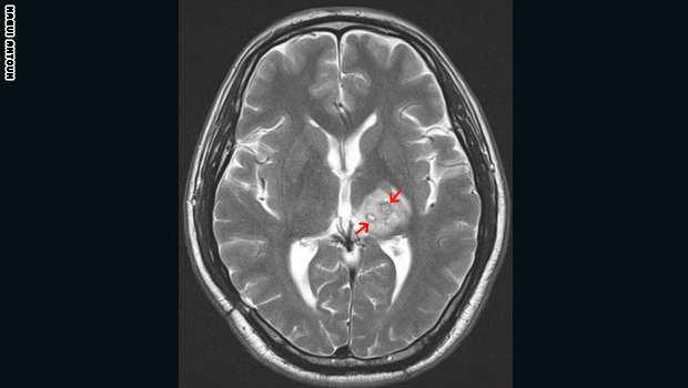 مخاطر انواع الديدان دماغ الإنسان image.php?token=b4e06e834b225f5f45bf391409f561bc&size=