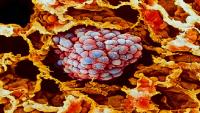 اكتشاف طريقة لتحفيز المناعة ضد السرطان