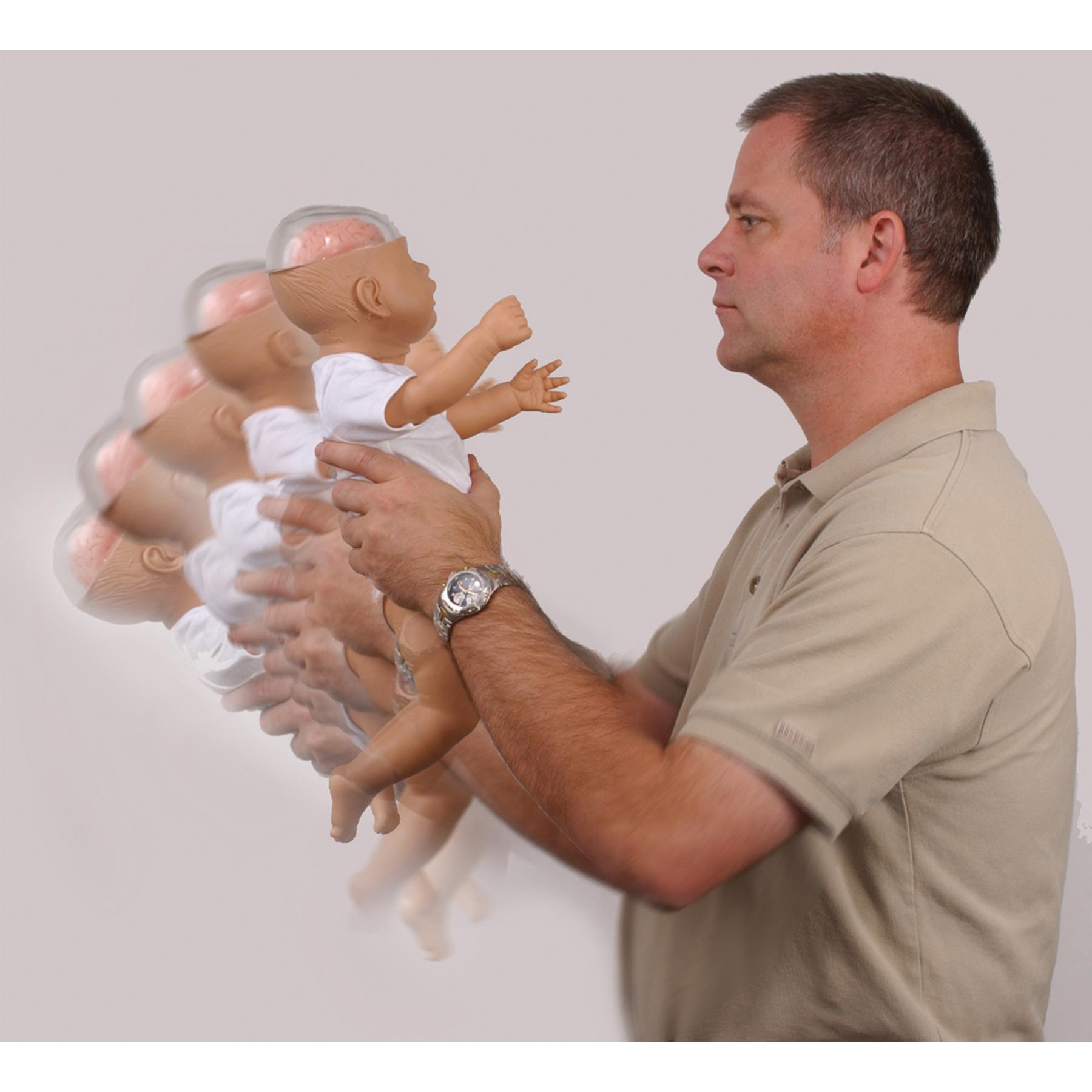أضرار هز الرضيع Image