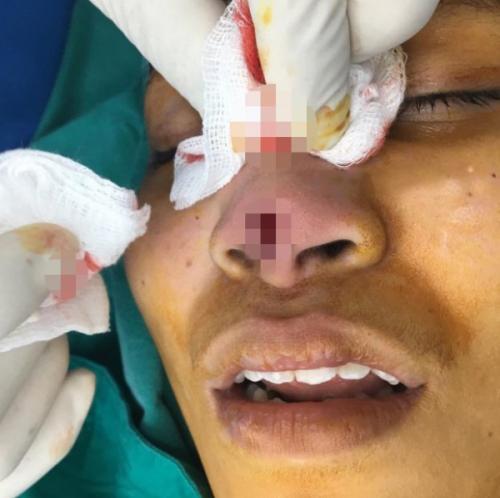 عملية تجميل في أنف امرأة تنتهي بكارثة ! (صور)