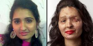 هندية مشوّهة الوجه من بين عارضات أسبوع الموضة بنيويورك