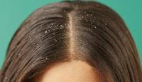 أطعمة لحماية الشعر من القشرة