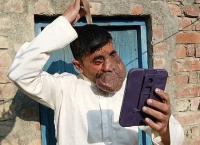 قرية هندية تعبد رجلاً بسبب ورم هائل في وجهه (صور)