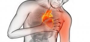 ارتفاع إصابة الشباب الأردني بجلطات القلب