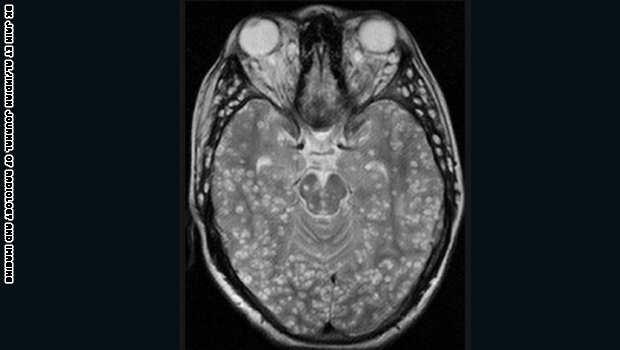 مخاطر انواع الديدان دماغ الإنسان image.php?token=e2410ad3dfe6b5f874f1069c82bc3c74&size=