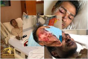 توقيف اردني اعتدى بوحشية على سعودي في ماليزيا