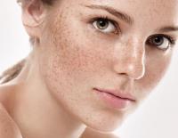 علاج التَّصَبُّغَات الجلدية بالأعشاب