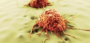 8 آلاف إصابة جديدة بالسرطان في الأردن