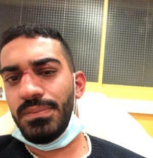 بحادثة عنصرية ..  ضرب مبرح لشاب أردني وشقيقته في فرنسا